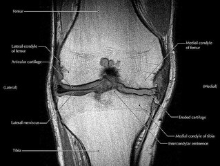 FACT OF FICTION FRIDAY || Knee Pain and Scans