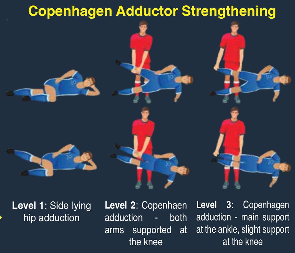 Adductor Tendinopathy Copenhagen Protocol for Rehab