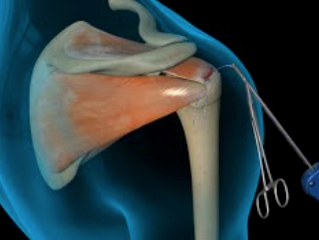 FACT OR FICTION FRIDAY || All rotator cuffs tears need surgery..