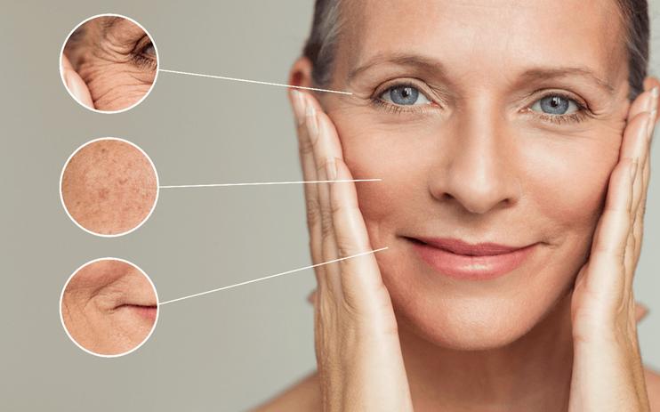 Wrinkles & Facial Images Medipod Aesthet