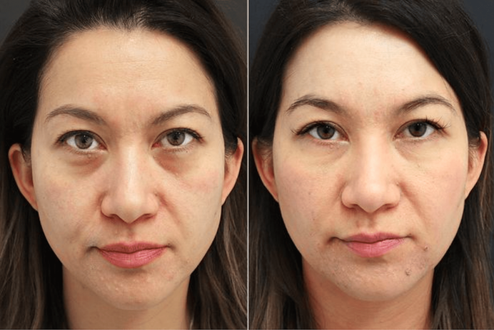 tear-trough-treatment- injcted-nonsurgic