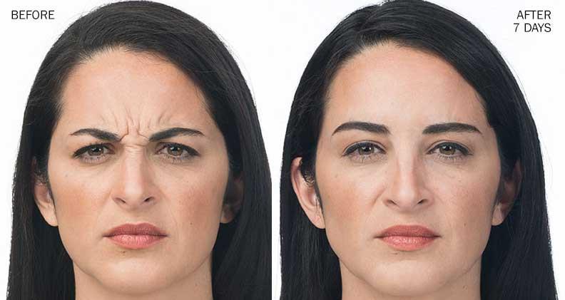 Botox treatment On Forehead Lines.jpg
