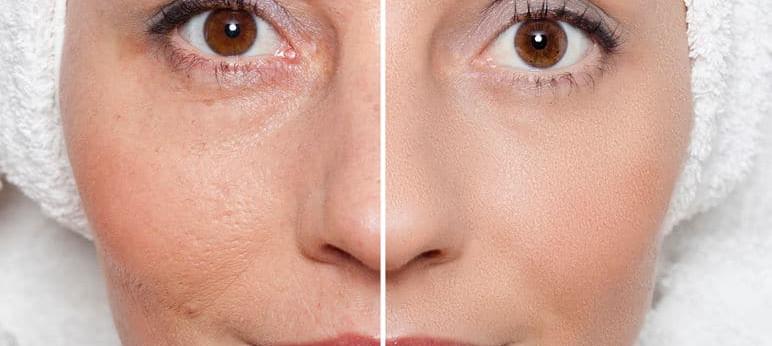 Before & After MEDAES skin rejuvenation.