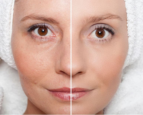 Before & After MEDAES skin rejuvenation.