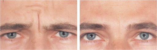 Male Forehead Wrinkle before & After.jpg
