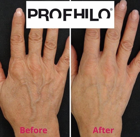 Profhilo before & after hands