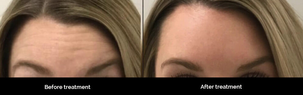 Forehead Before and after treatment.jpg
