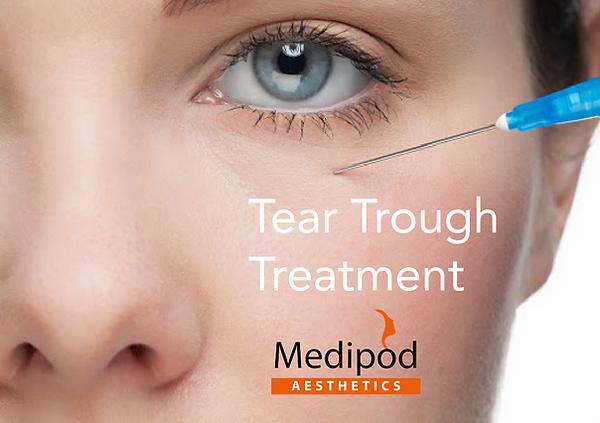 Tear Trough treatment Medipo Aesthetics-