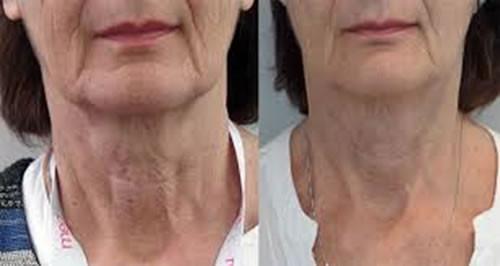 Profjilo before & After neck