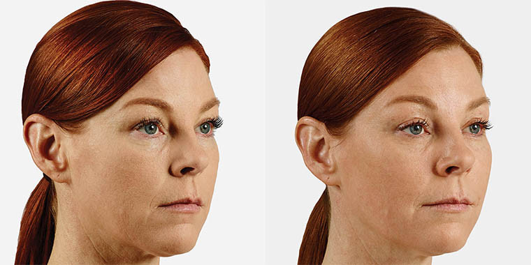 cheek enhancement before and after 2.jpg