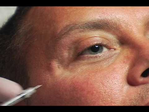 Male crows Feet Injection treatment.jpg