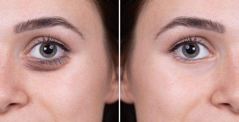Tear Trough before & After treatment.jpg