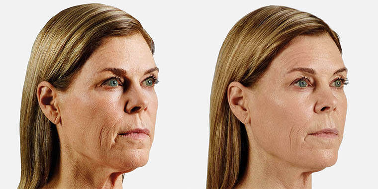 cheek enhancement before and after 1.jpg