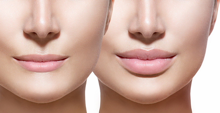 Before-and-after-lip-filler-in-