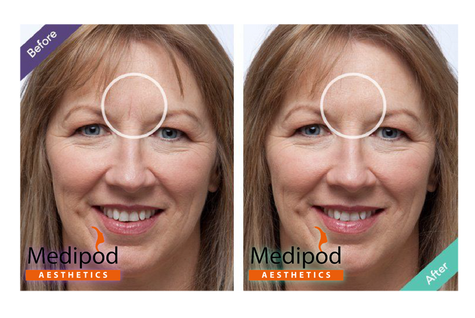 Frown%20line%20treatment%20before%20%26%