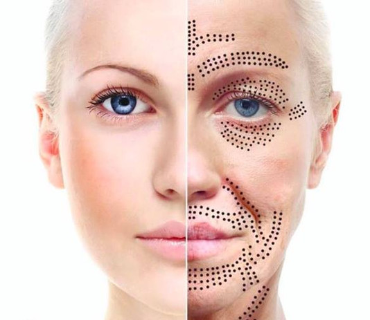Skin Rejuvination & Tightening through F