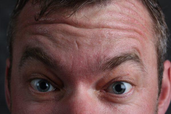 Male Forehead Wrinkles.jpg