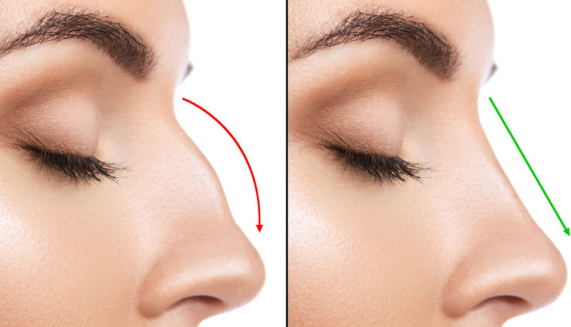 Non Surgical Rhinoplasty 1 Med Aes.jpg