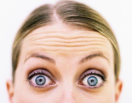 Forehead wrinkles Medipod Aesthetics.jpg