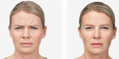 Medipod Aes Clinics botox-before-after i