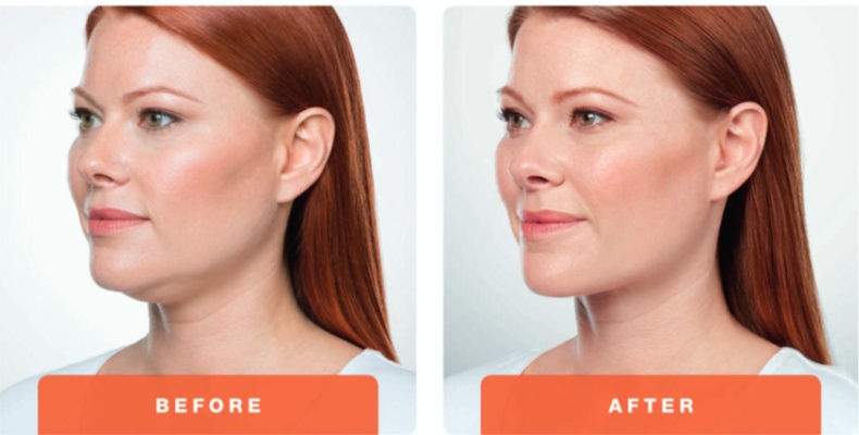 Before & After Jawline contouring.jpg