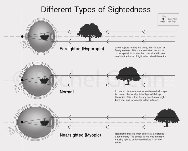 Different Types of Sightedness