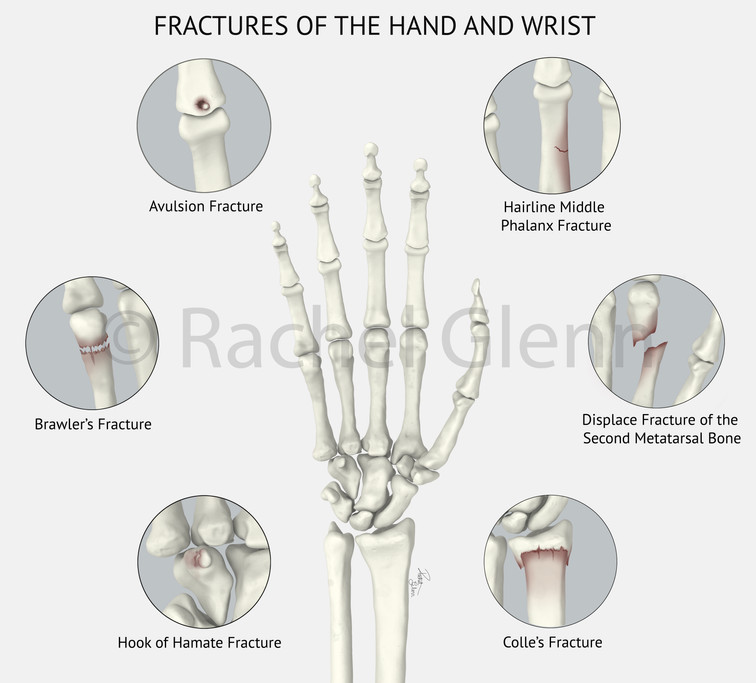 Ractures of the Hand and Wrist