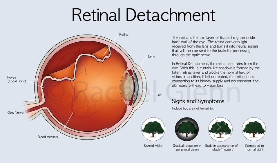 Retinal Deatchment