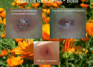 Herbal Treatment of Boils