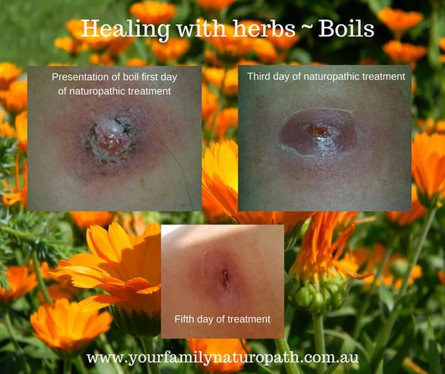 Herbal Treatment of Boils