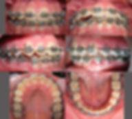 Frenillos Maipu Ortodoncia