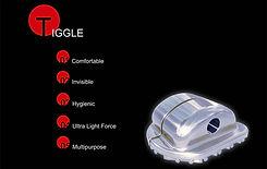 Tiggle Lingual Bracket System