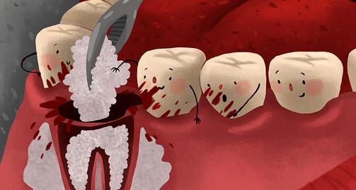 Bone Grafting in Dental Implants