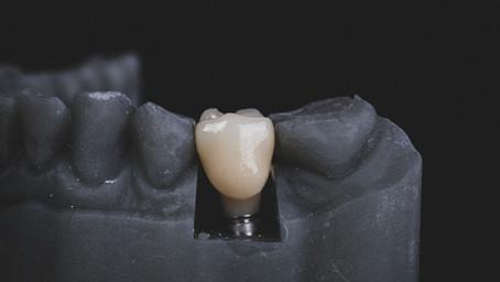 The Evolution of Dental Implants