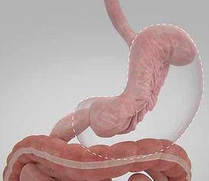 Gastroplastia Endoscopica