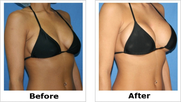 Shaped breast implants before and after