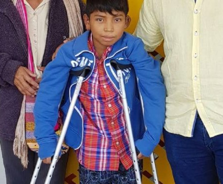Niño wayuu vuelve a caminar gracias a innovadora cirugía