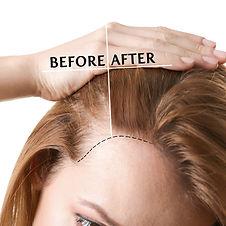 hair-loss-treatment-featured.jpg