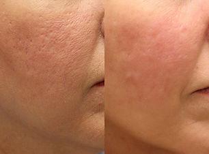 before-after-micro-needling-rf-7.jpg