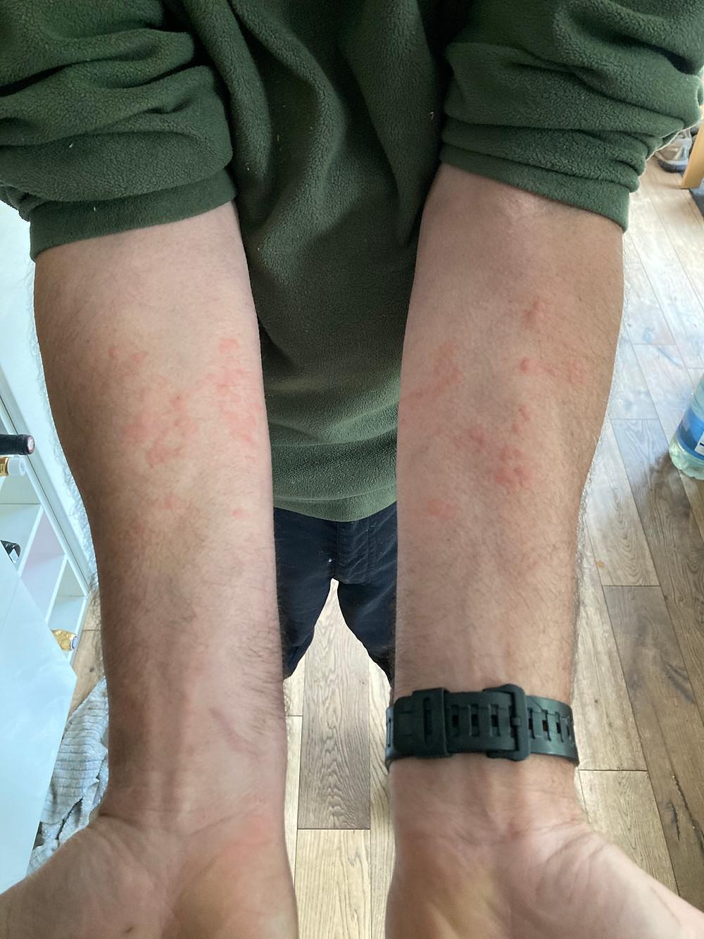 Leon's stung arms