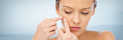 acne-traitement-laser
