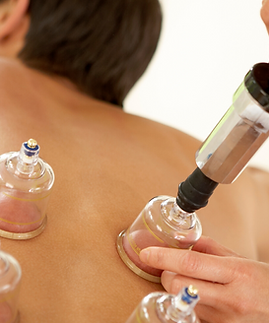 cupping therapy toledo and sylvania.png