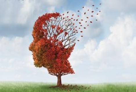 Vous connaissez l'Alzheimer ? Ce voleur de souvenirs !