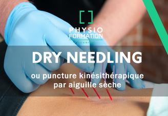 Efficacité du Dry Needling en Kinésithérapie ?