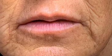 jo b4 lip vol.jpg