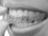 dr shane black, dr mark eckler, dr derek leung, free consultation, mississauga, brampton, top orthodontists, modern orthodontics, invisalign, adult braces, children braces, clear braces