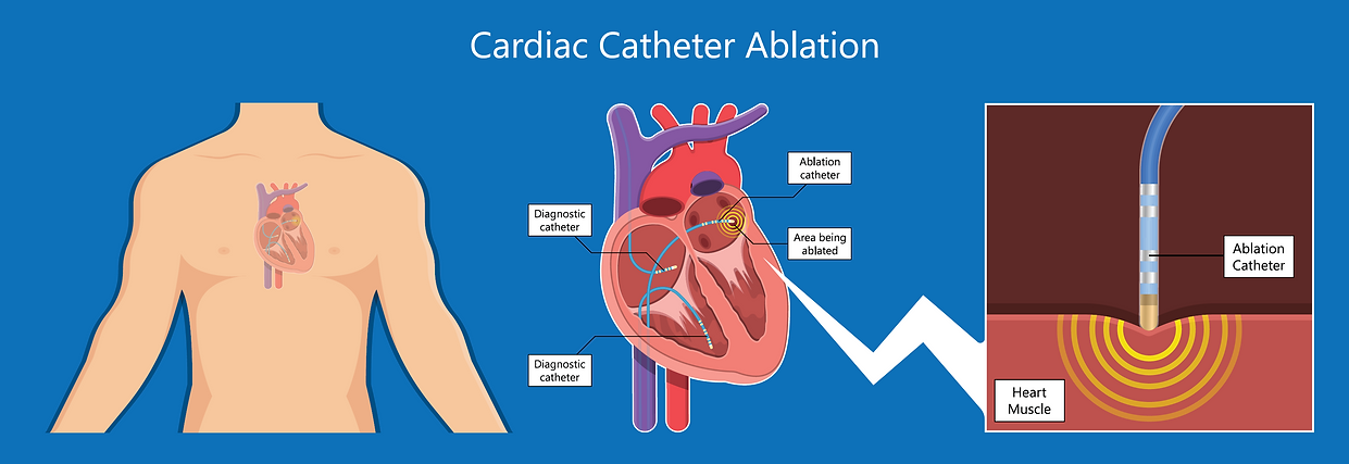 Supraventricular Tachycardia (SVT) ablat