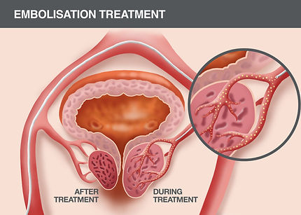 2-Cartoon-prostatic-embolisation-perform