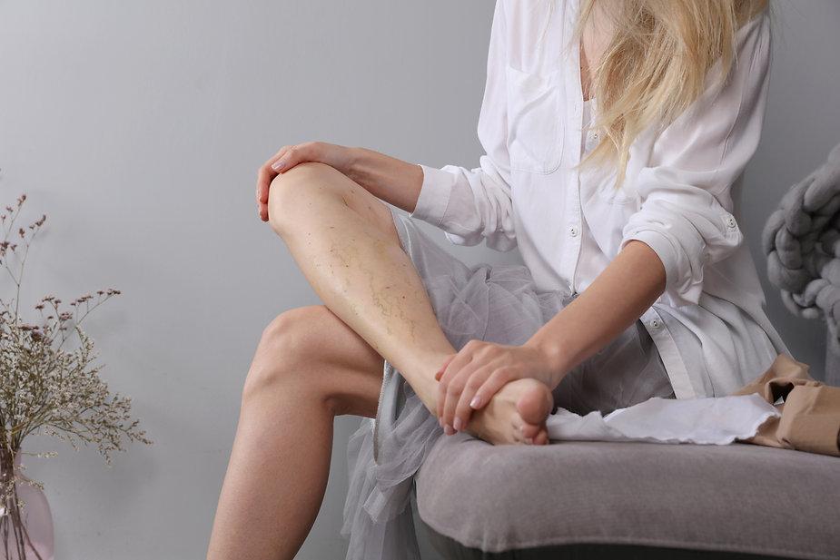 Thrombophlebitis varicose vein condition
