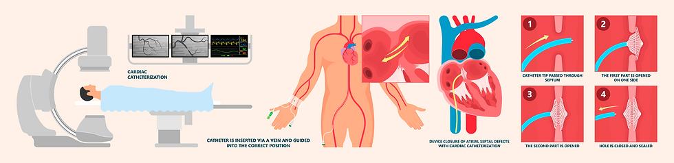 ASD atrial-septum defect or PFO perforat